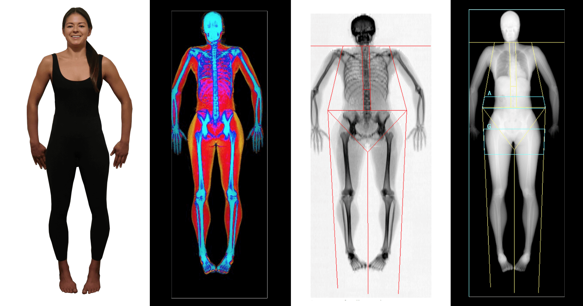 dexa scans and kim lying beside them at body comp imaging
