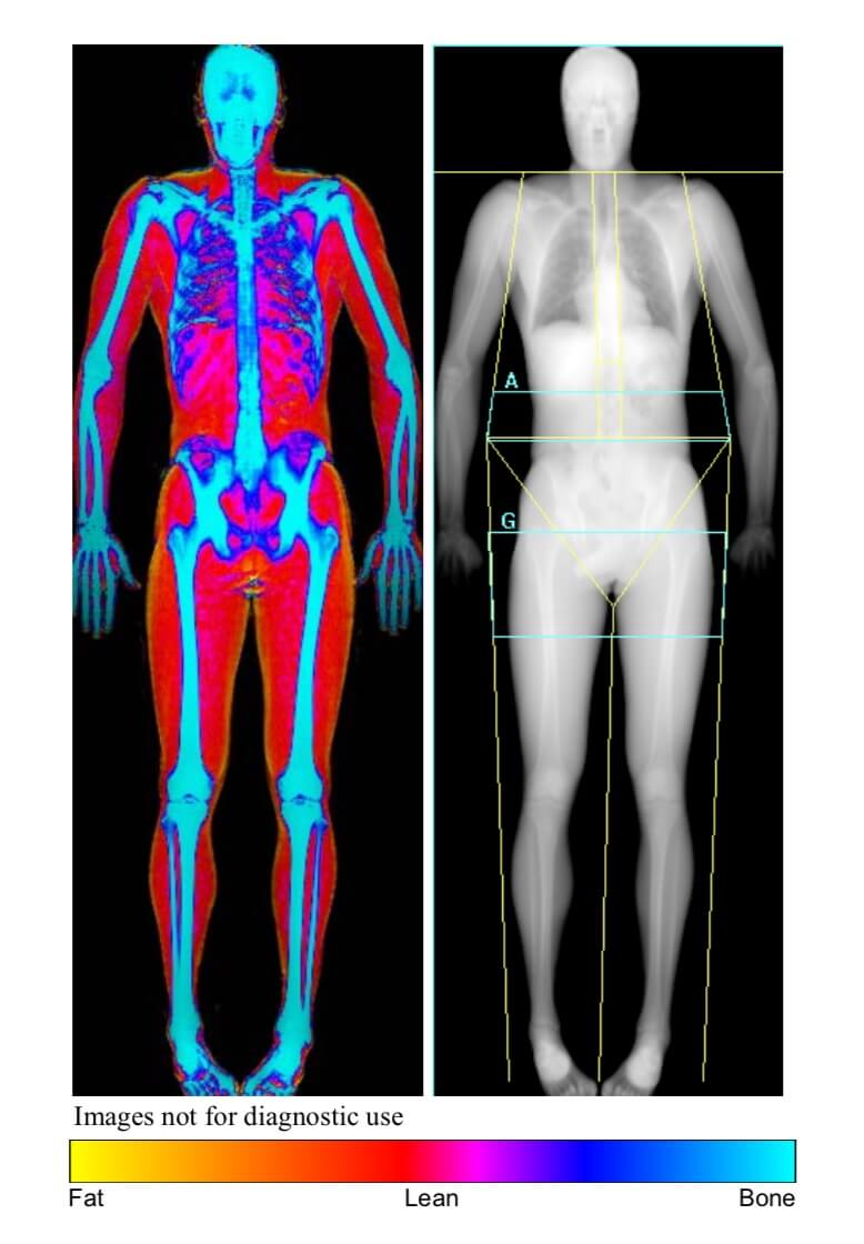 Bodyfat DEXA scan results.